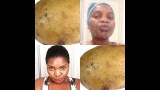 Tumia kiazi kuondoa madoa na mabaka usoni kwa haraka
