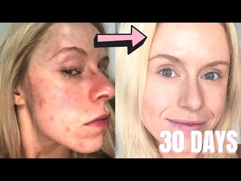 , title : 'In 30 days I fixed 15 years of horrible red bumpy dry pimple- filled skin *LIFE CHANGING*'