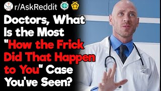 """Doctors, What's Your """"How the Frick Did That Happen to You"""" Moment?"""