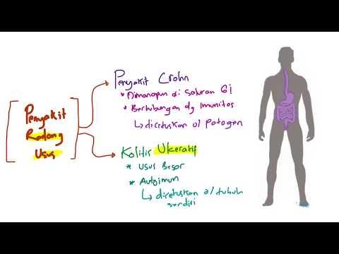 Fibrózis a longidáz- prosztatában
