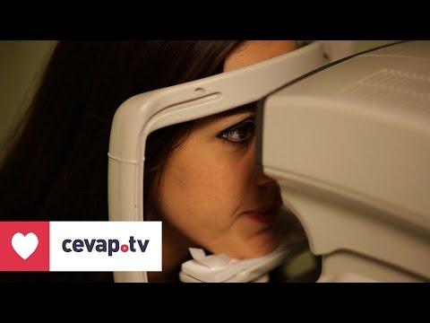 Göz kuruluğu nasıl tedavi edilir?