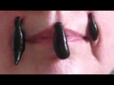 Синусит и отеки под глазами