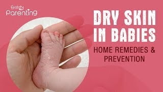 Baby Dry Skin - Causes, Remedies & Prevention
