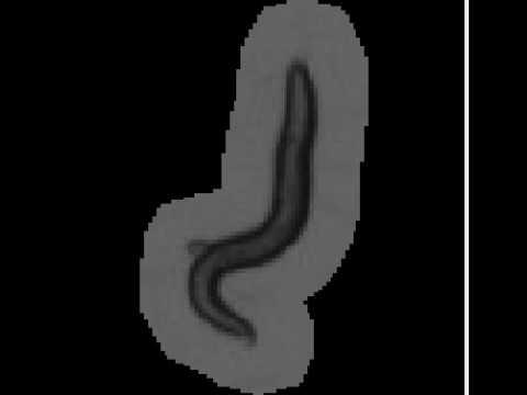 Szilícium vizes paraziták