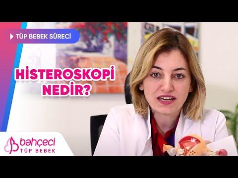 Histeroskopi Nedir?