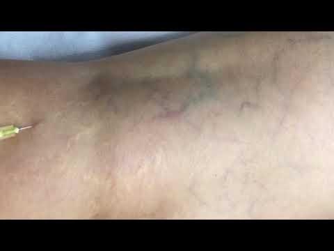 Tratamentul durerii articulare pentru hepatită