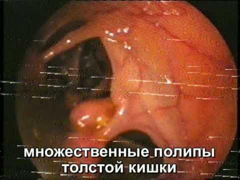 Диффузный семейный полипоз. Колоноскопия видео.