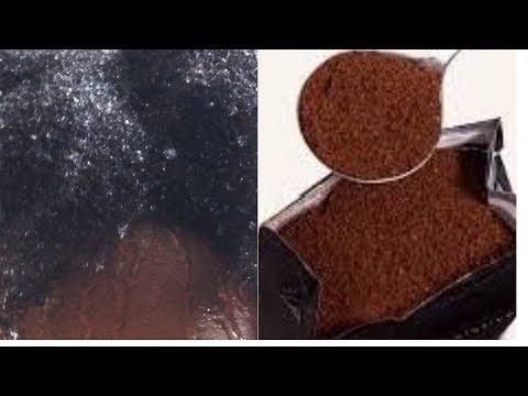 Kazan la correction laser de la personne