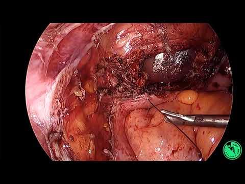 Całkowita histerektomia laparoskopowa: zamknięcie mankietu pochwy