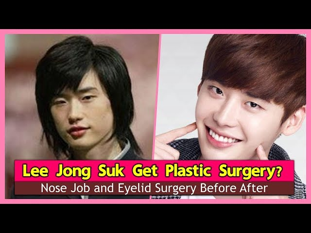 Lee-jong-suk-get-plastic