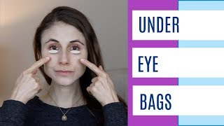 Under eye bags & puffy eyes: Q&A with dermatologist Dr Dray