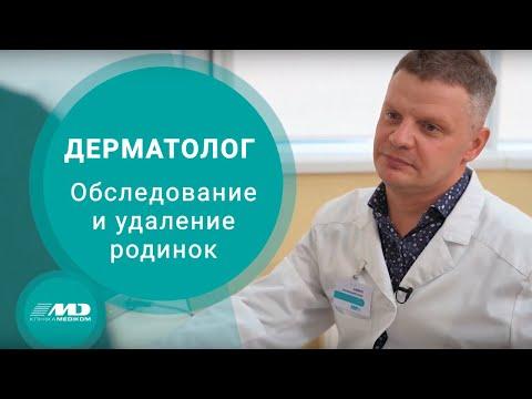Дерматоскопія та видалення невусу