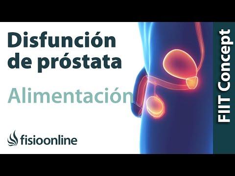 SDA prostatite 2
