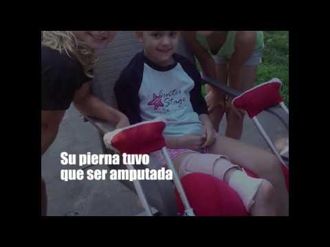 Inmadurez fisiológica de articulaciones de la cadera de un niño