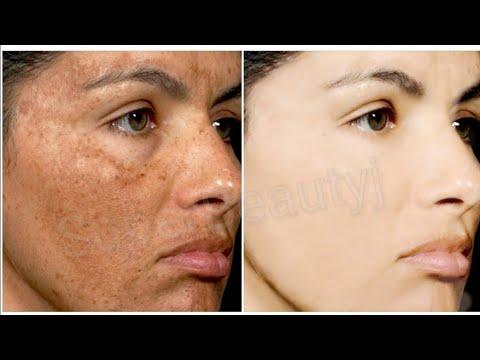 Ching hanggang sa kaibuturan ng pigment spots