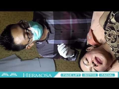 Perawatan wajah di klinik kecantikan surabaya hermosa clinic