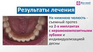 Протезирование при полном отсутствии зубов