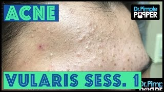 Stubborn Whitehead extractions & Acne Vulgaris: Session 1