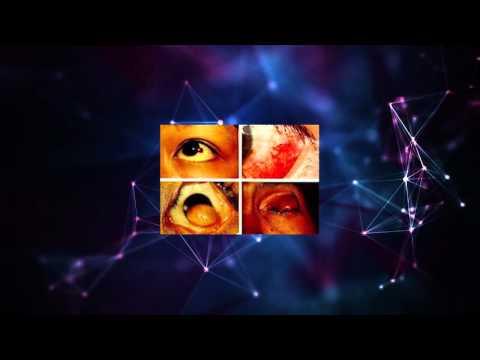 ความคิดเห็น neurodermatitis polisorb
