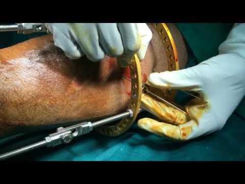Starke Schmerzen im unteren Rücken ziehen Beine