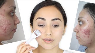 Derma Roller for Acne Scars | How I Healed My Acne Scars