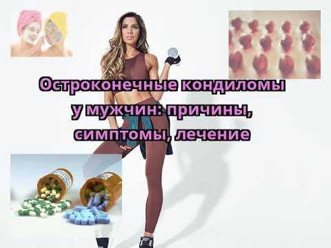 Удаление бородавок московский пр