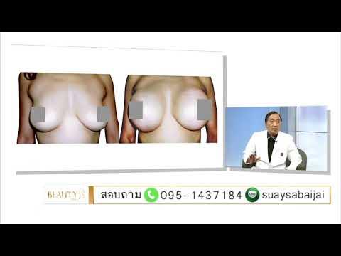 ยู Feofilaktova การผ่าตัดเต้านม