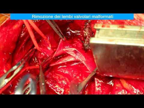 Thrombophlebitis di un graffio di gamba