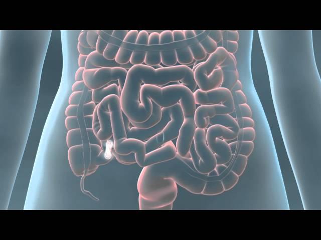 PillCam COLON 2 3D Animation v2 – Pathology