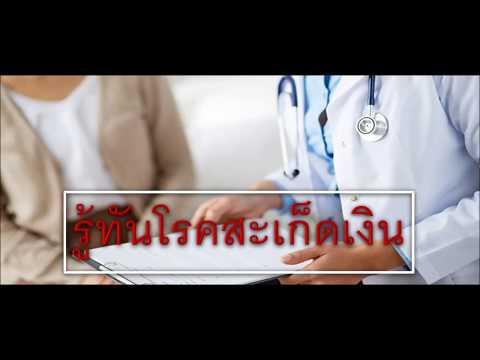 การรักษาโรคสะเก็ดเงิน