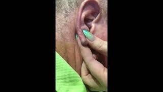 Ear lobe pus ball - 4th edition