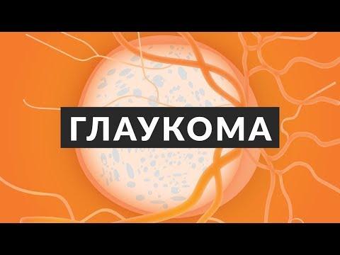 Что такое глаукома? 7 фактов о глаукоме и почему надо сходить к врачу-офтальмологу?