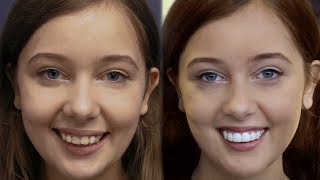 Youtube Video LA California Girl Gets Dental Veneers by Brighter Image Lab -Took 7 Minutes..
