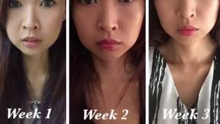 Tulip Hifu Body Treatment - Most Popular Videos