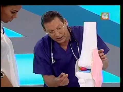 Precio bloqueo de la articulación de la rodilla