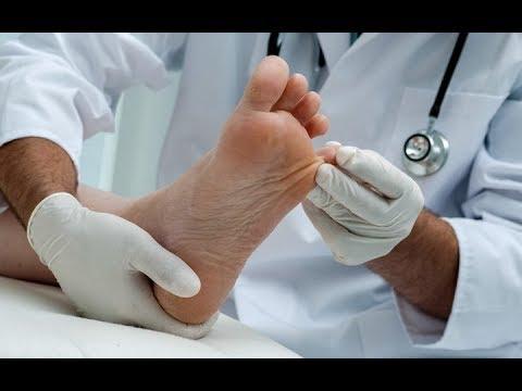 Pozbyć stłuczki na kciuk w nogach
