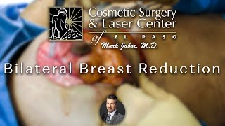 Bilateral Breast Reduction Anchor Incision (Wise Pattern)| Dr. Mark Jabor