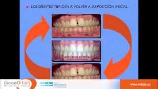 Retención de ortodoncia Vivera