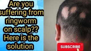 Ringworm on the scalp : cause , symptoms and home remedies || Sara's home vedas