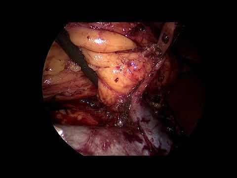 Laparoscopic right radical nephrectomy-hilum after dissection