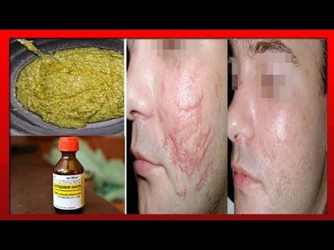 Осветлить кожу пятно пигментное пятно
