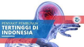 Stroke, Terjadi Ketika Pasokan Darah ke Otak Terganggu atau Terhenti sehingga Kekurangan Oksigen