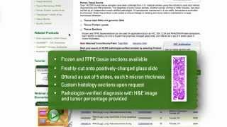 TissueFocus: Normal and Cancer Human Tissues & Derivatives