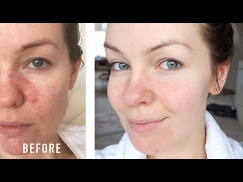 Video HOW I CURED MY ROSACEA // IRRITATION // REDNESS // MY STORY