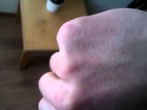 Palucha koślawego wkładka