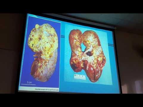 Formas nosológicas de hipertensión
