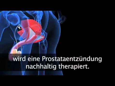 Prostata-Massage und Physiotherapie