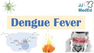 Dengue Fever | Pathophysiology, Symptoms, Diagnosis & Treatment