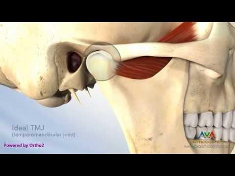 ICD-10 zu verformen Arthrose des Hüftgelenks Code