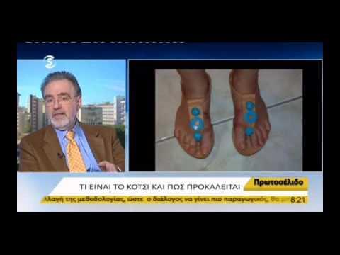 Η θεραπεία πρησμένα πόδια στο διαβήτη